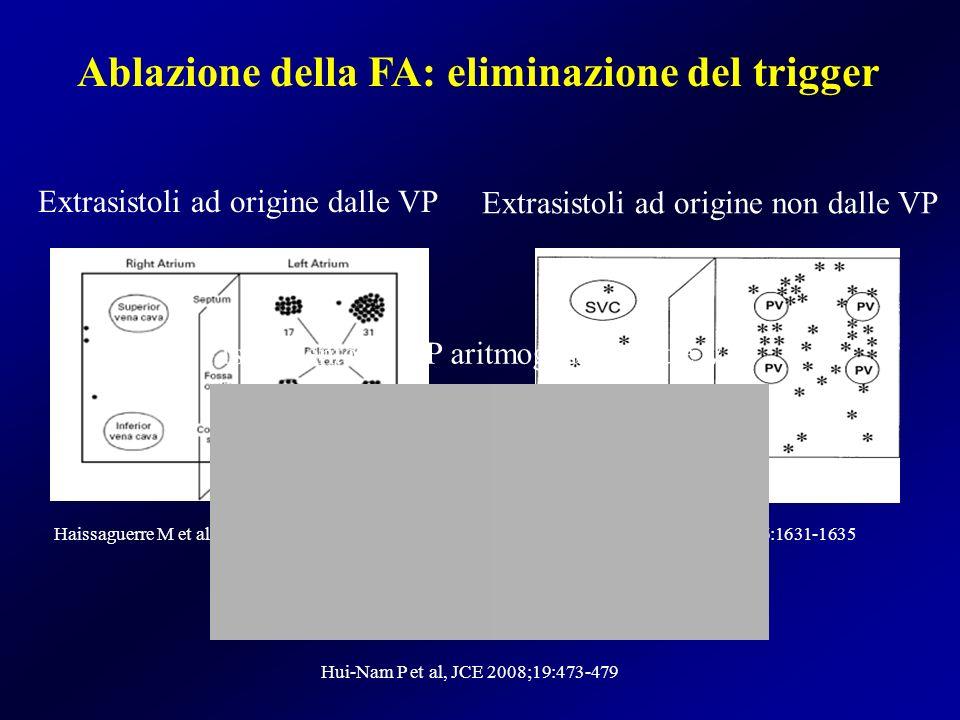 Ablazione della FA: eliminazione del trigger