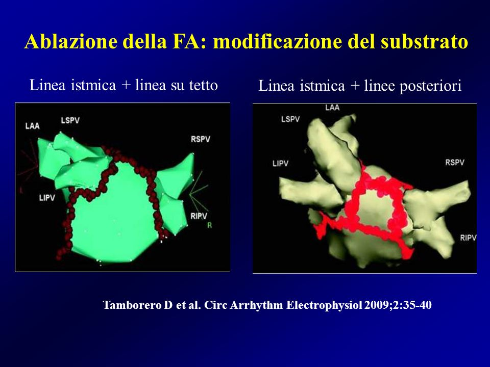 Ablazione della FA: modificazione del substrato