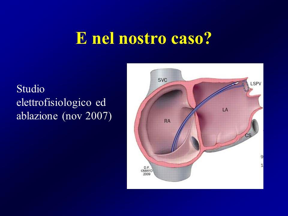 E nel nostro caso Studio elettrofisiologico ed ablazione (nov 2007)