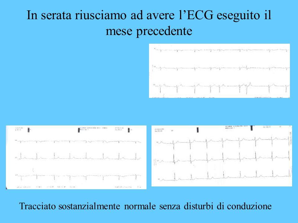 In serata riusciamo ad avere l'ECG eseguito il mese precedente