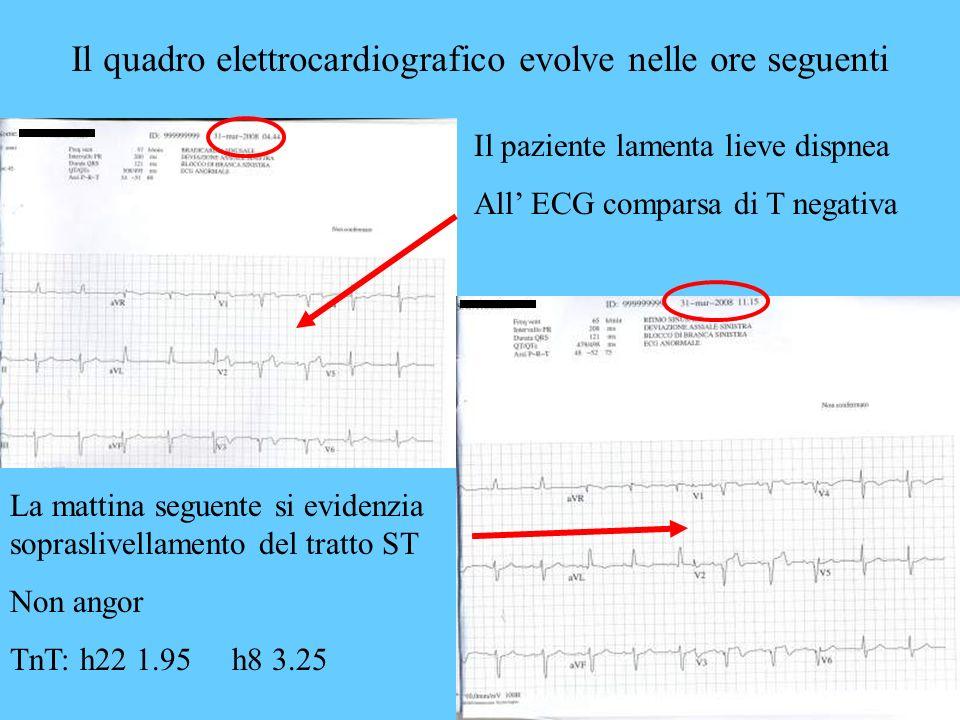 Il quadro elettrocardiografico evolve nelle ore seguenti