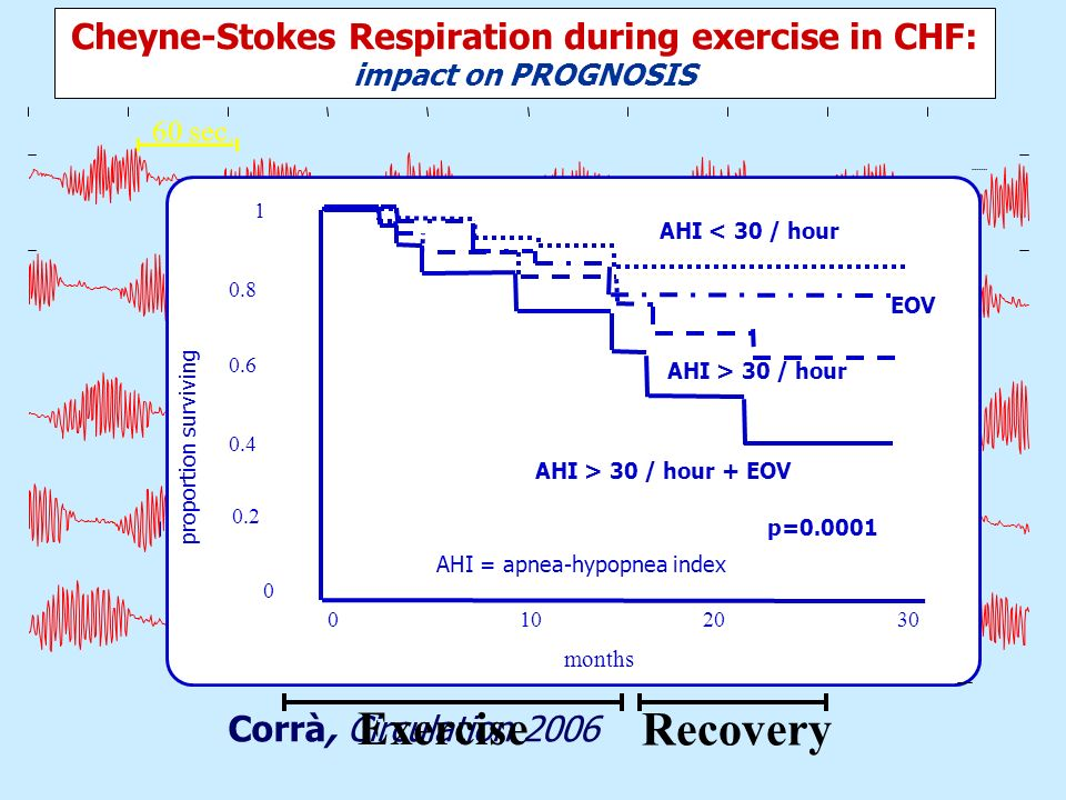 Cheyne-Stokes Respiration during exercise in CHF: