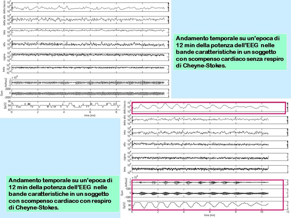 Andamento temporale su un'epoca di 12 min della potenza dell'EEG nelle bande caratteristiche in un soggetto con scompenso cardiaco senza respiro di Cheyne-Stokes.