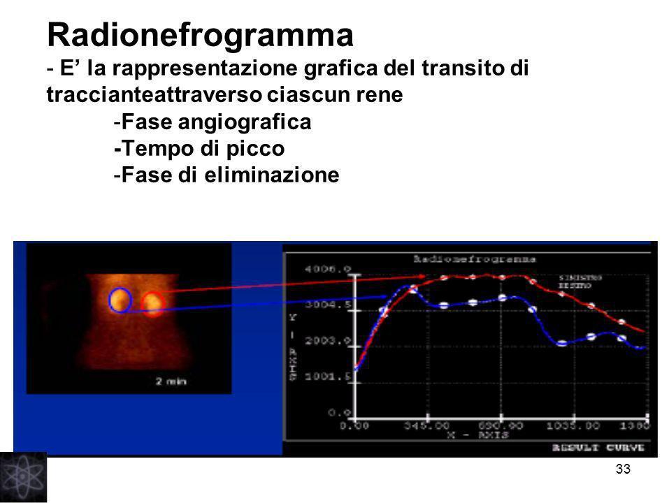 Radionefrogramma - E' la rappresentazione grafica del transito di traccianteattraverso ciascun rene -Fase angiografica -Tempo di picco -Fase di eliminazione