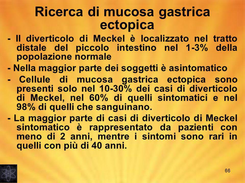 Ricerca di mucosa gastrica ectopica