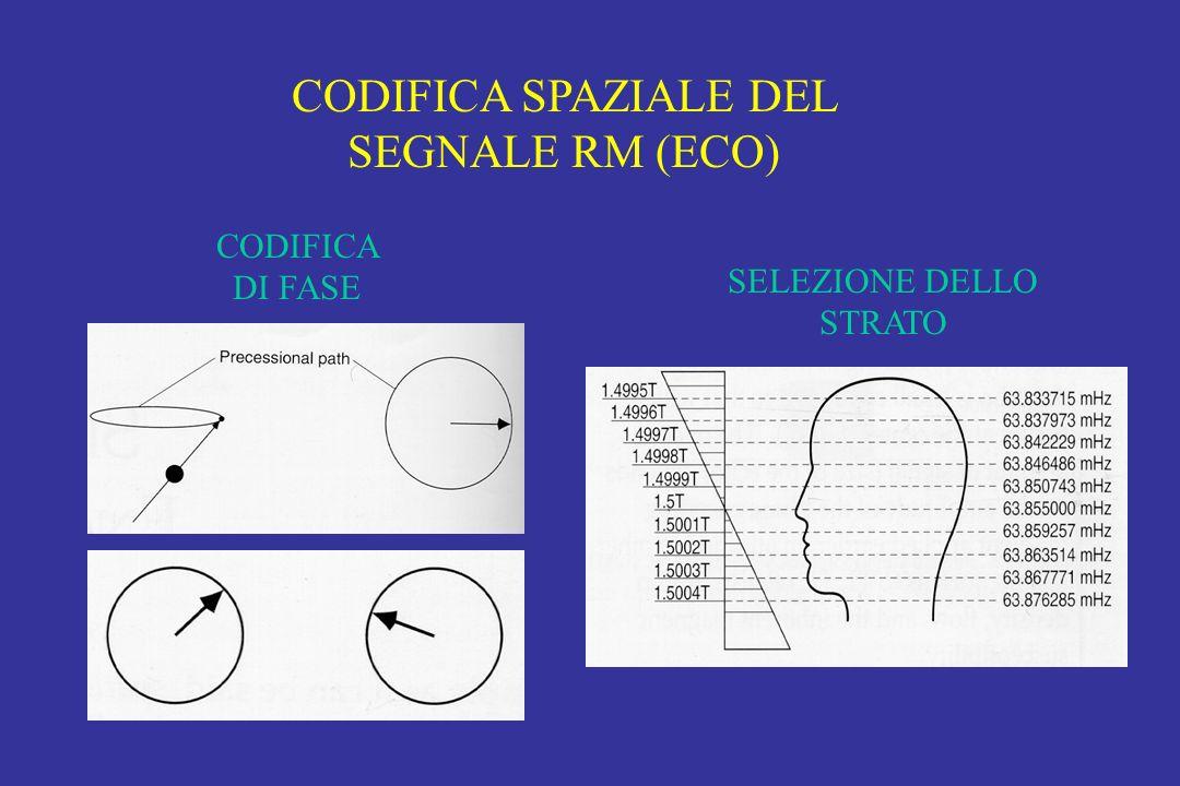 CODIFICA SPAZIALE DEL SEGNALE RM (ECO)