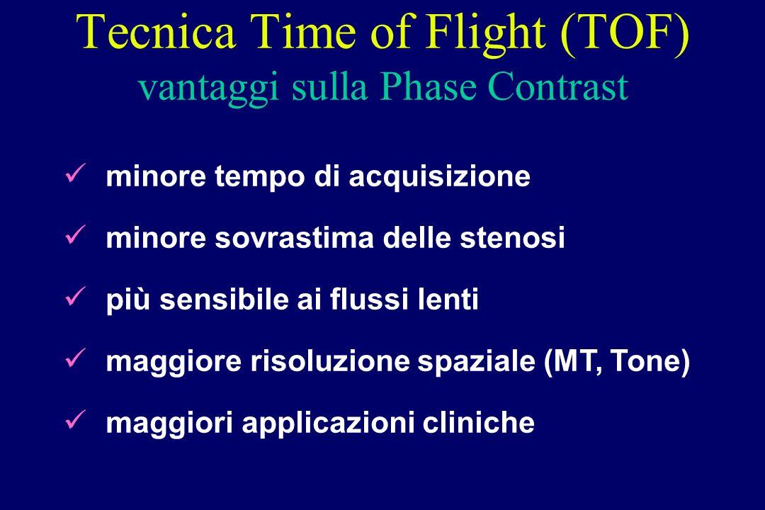 Tecnica Time of Flight (TOF) vantaggi sulla Phase Contrast