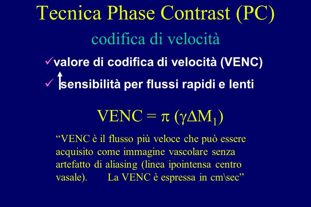 Tecnica Phase Contrast (PC) codifica di velocità