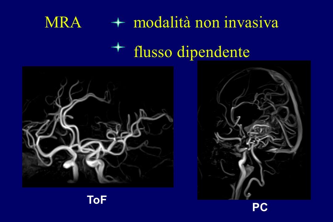 MRA modalità non invasiva flusso dipendente