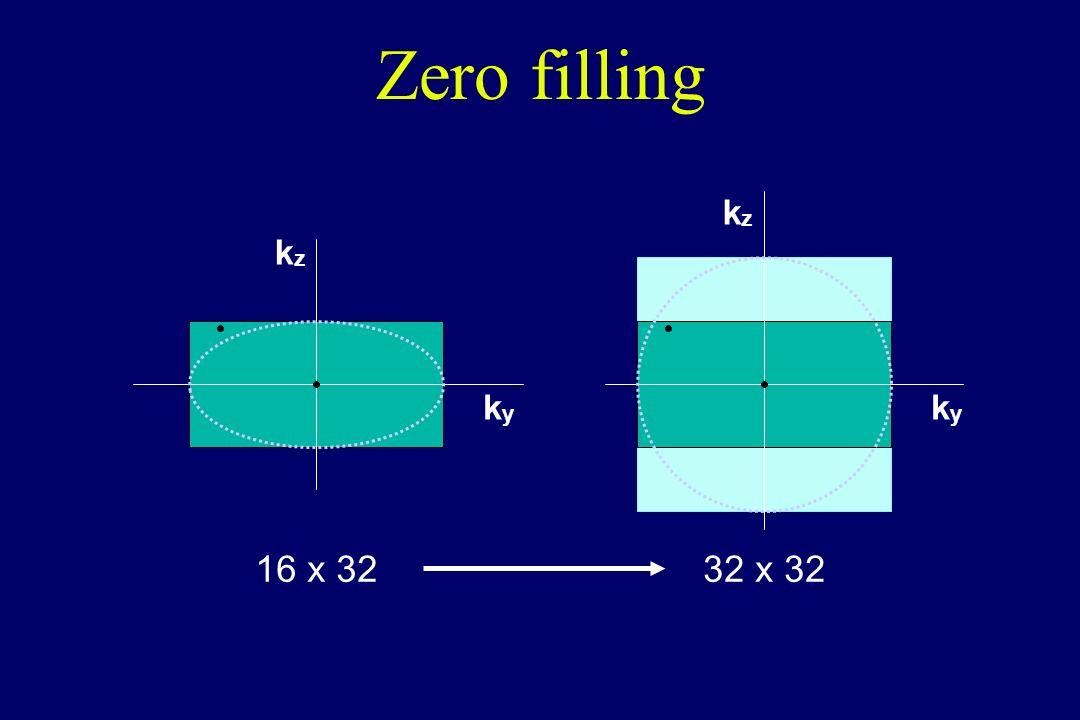 Zero filling kz kz ky ky 16 x 32 32 x 32