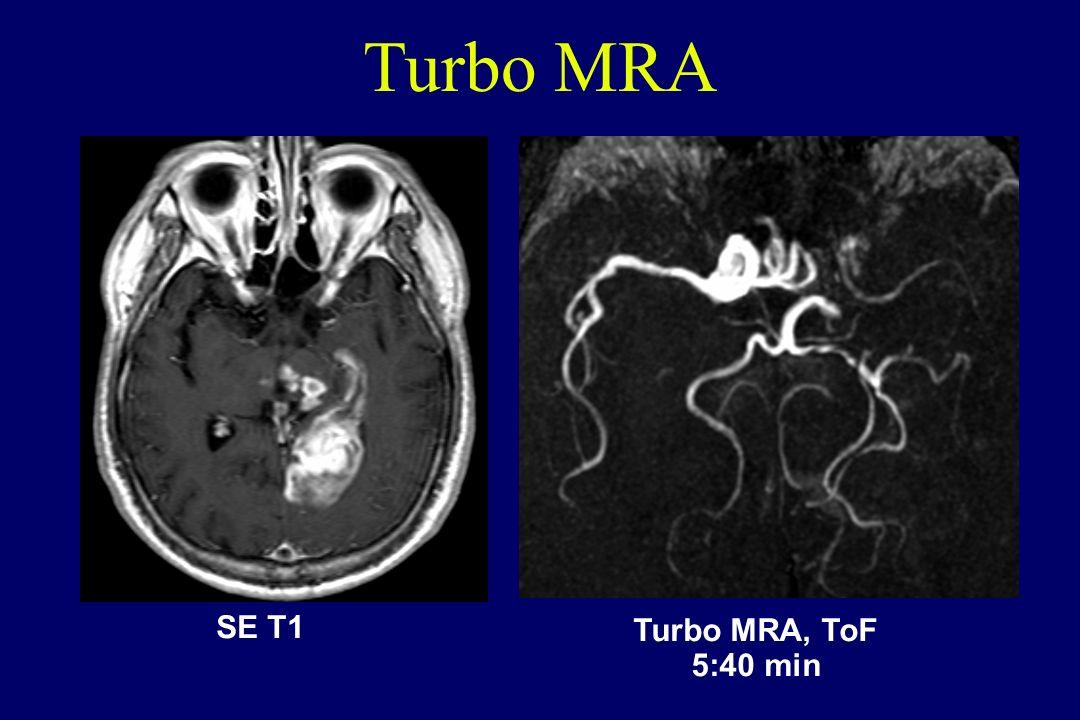 Turbo MRA SE T1 Turbo MRA, ToF 5:40 min
