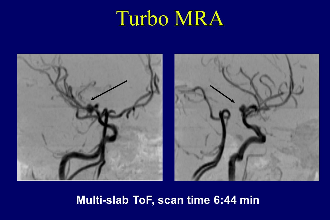Multi-slab ToF, scan time 6:44 min