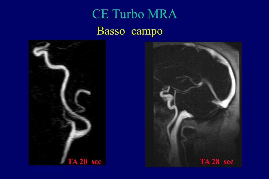 CE Turbo MRA Basso campo TA 20 sec TA 28 sec