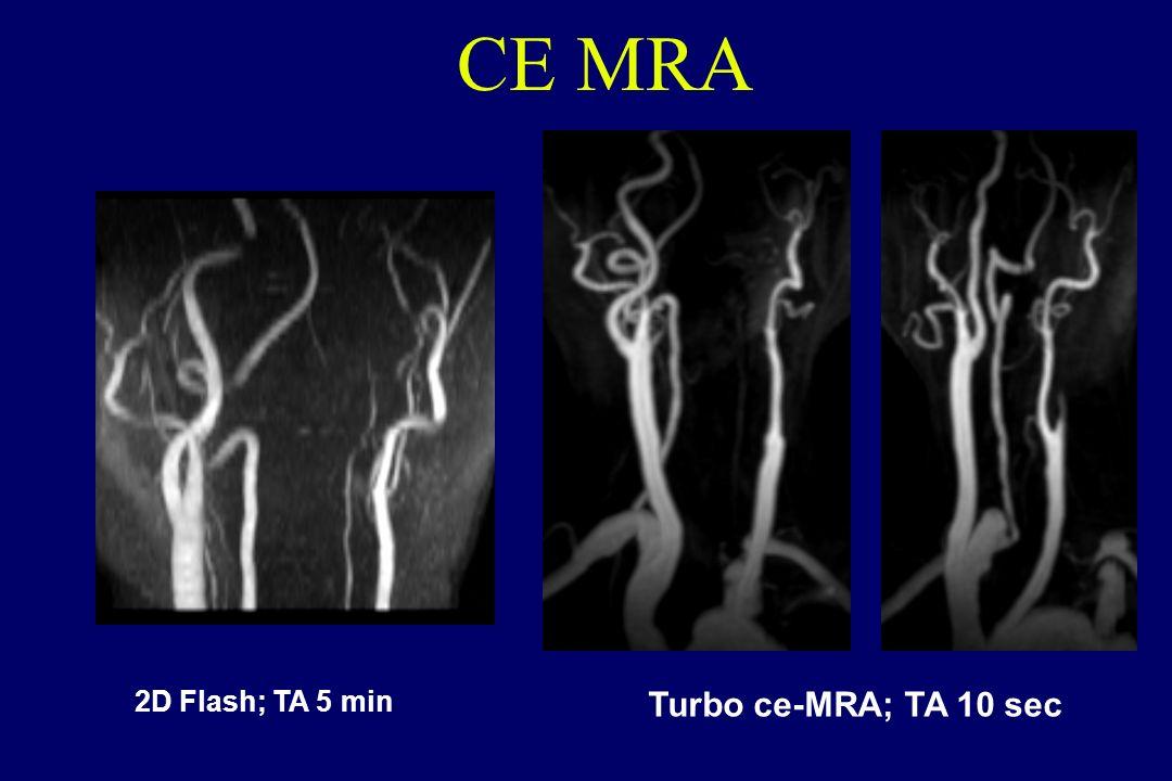 CE MRA 2D Flash; TA 5 min Turbo ce-MRA; TA 10 sec