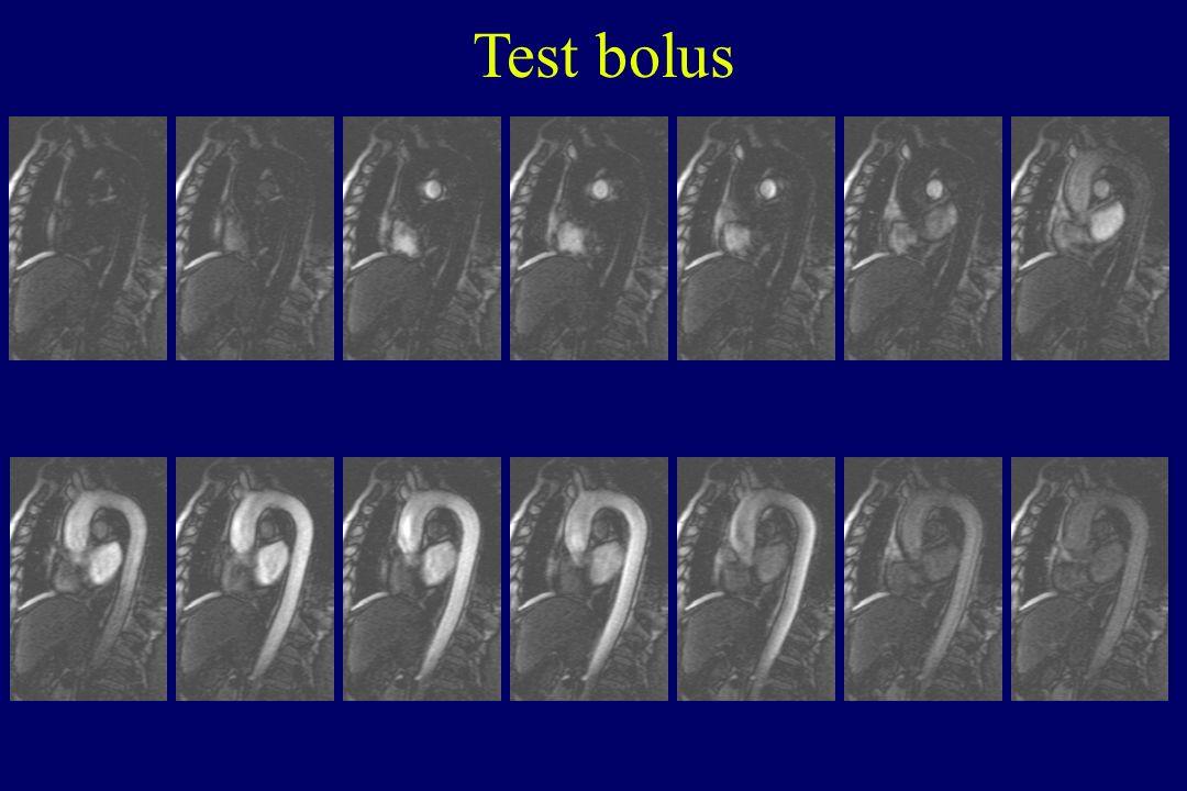 Test bolus