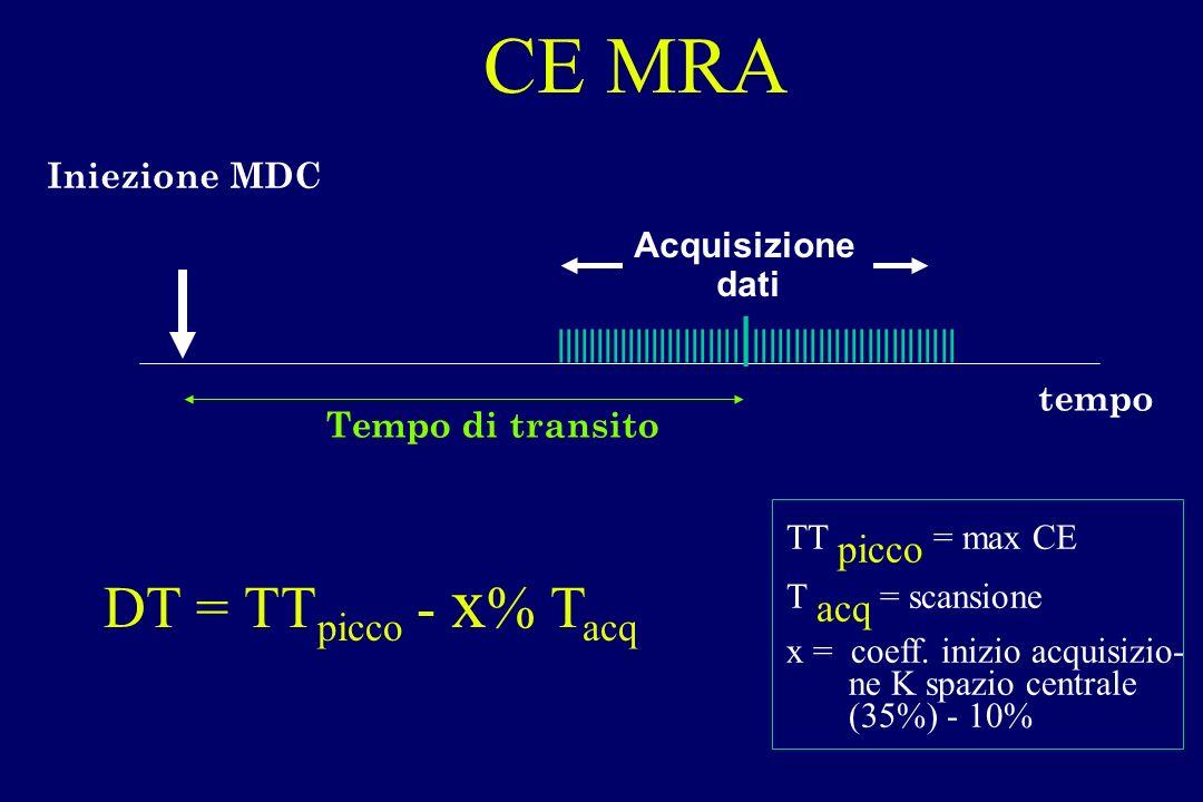 CE MRA DT = TTpicco - x% Tacq Iniezione MDC Acquisizione dati
