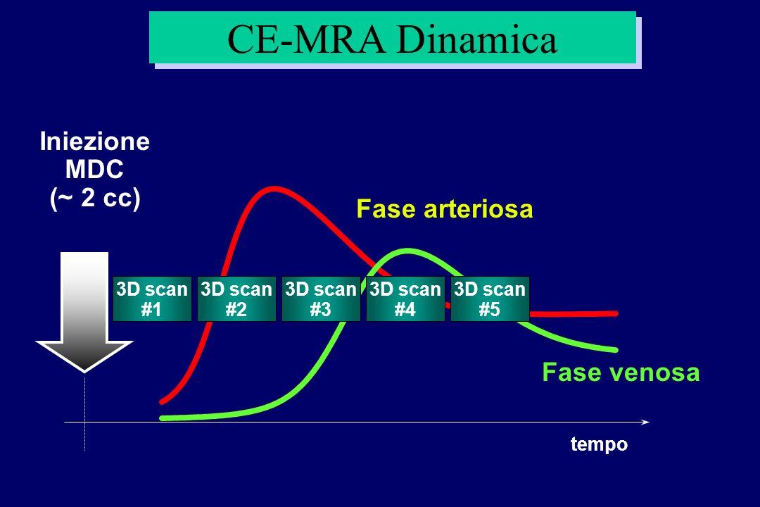 CE-MRA Dinamica Iniezione MDC (~ 2 cc) Fase arteriosa Fase venosa