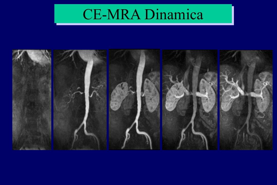 CE-MRA Dinamica