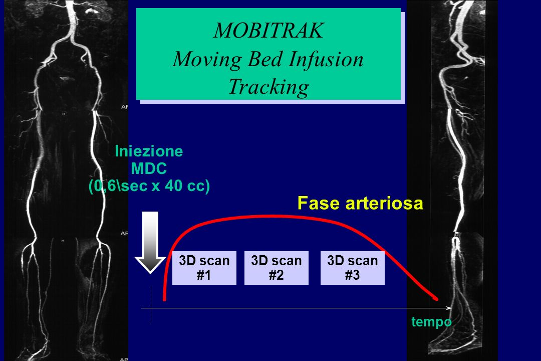 Moving Bed Infusion Tracking