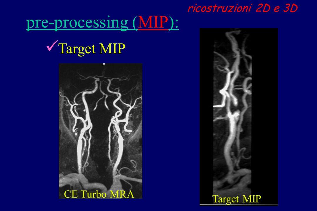 pre-processing (MIP):