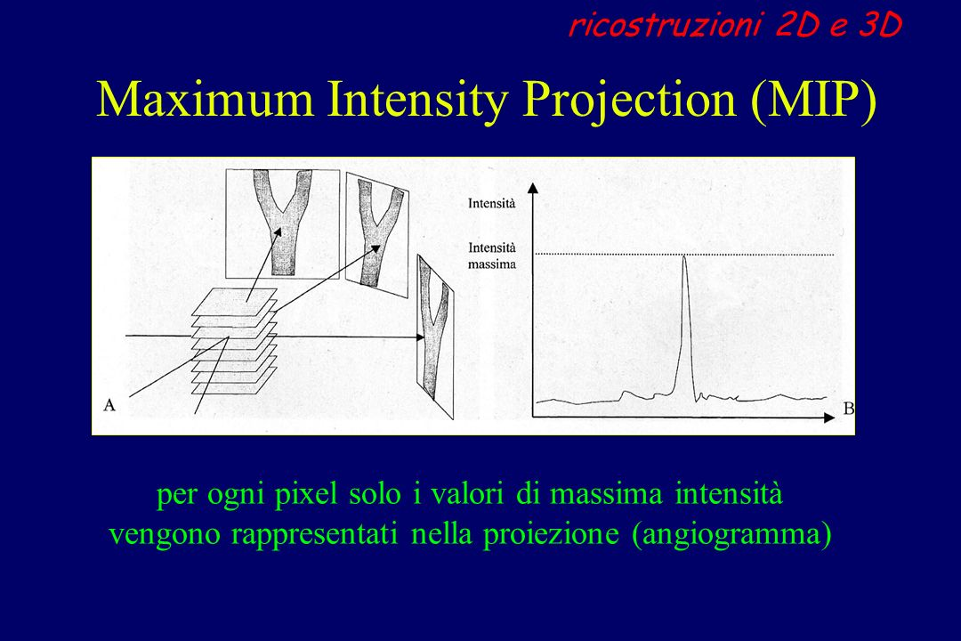 Maximum Intensity Projection (MIP)
