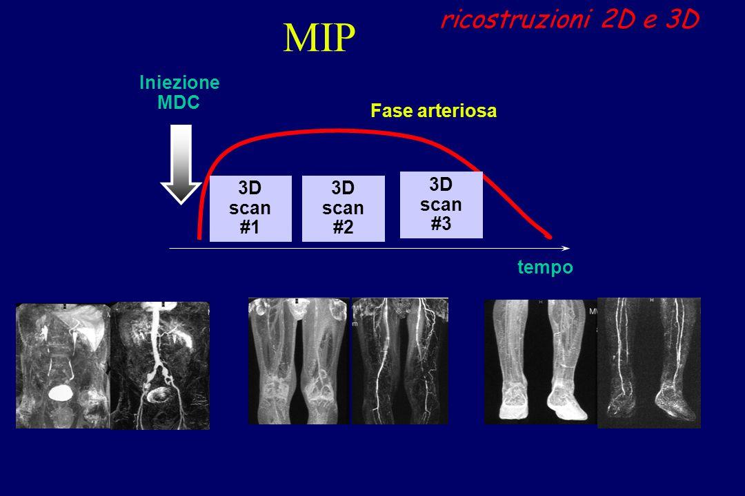 MIP ricostruzioni 2D e 3D Iniezione MDC Fase arteriosa 3D scan #1