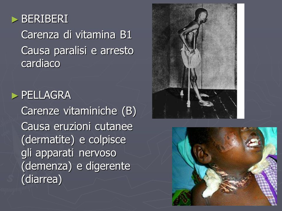 BERIBERI Carenza di vitamina B1. Causa paralisi e arresto cardiaco. PELLAGRA. Carenze vitaminiche (B)