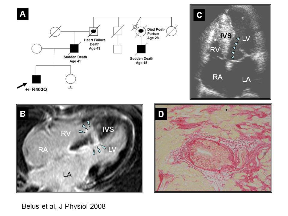 A C IVS LV RV RA LA B D IVS RV RA LV LA Belus et al, J Physiol 2008