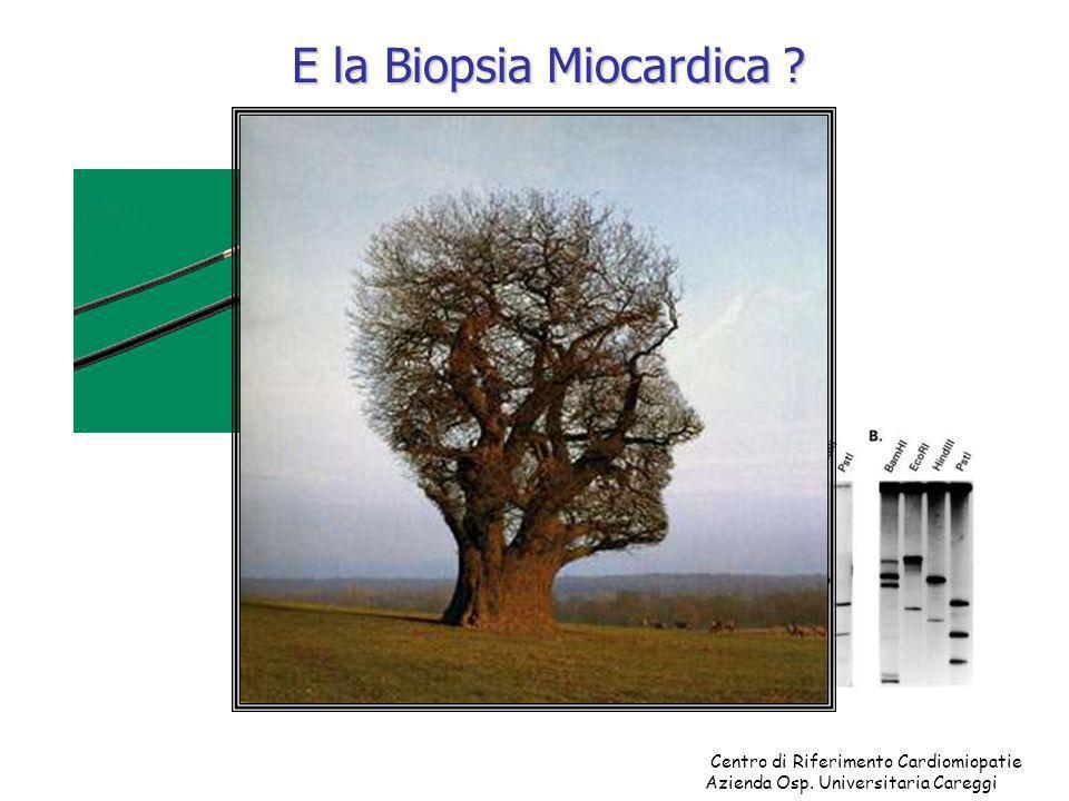 E la Biopsia Miocardica