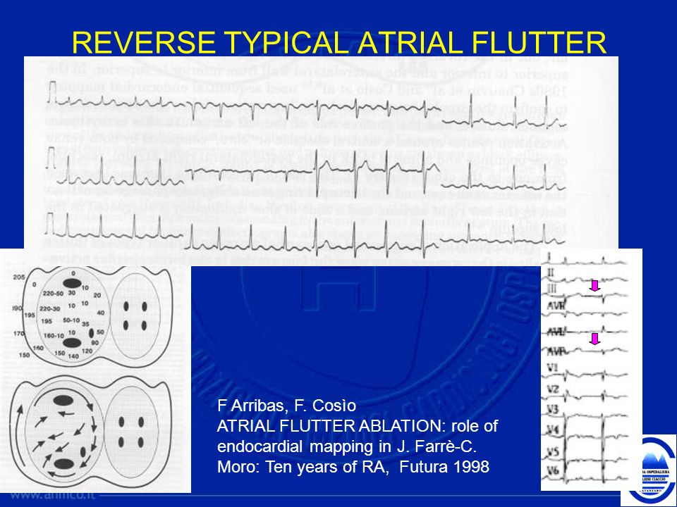 REVERSE TYPICAL ATRIAL FLUTTER