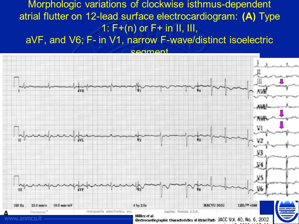 Morphologic variations of clockwise isthmus-dependent atrial flutter on 12-lead surface electrocardiogram: (A) Type 1: F+(n) or F+ in II, III, aVF, and V6; F- in V1, narrow F-wave/distinct isoelectric segment