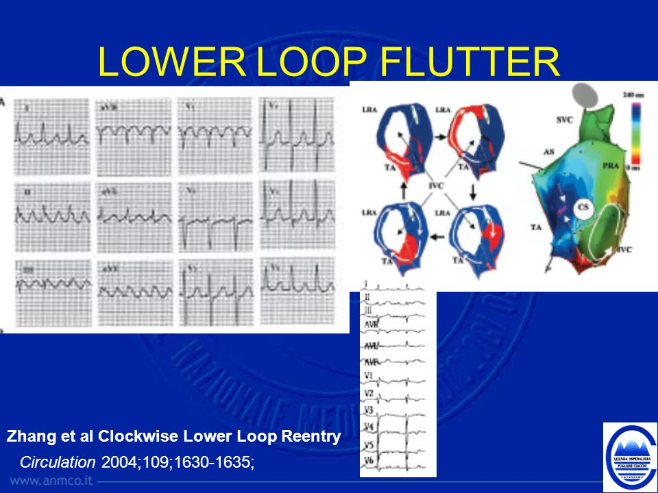 LOWER LOOP FLUTTER Zhang et al Clockwise Lower Loop Reentry