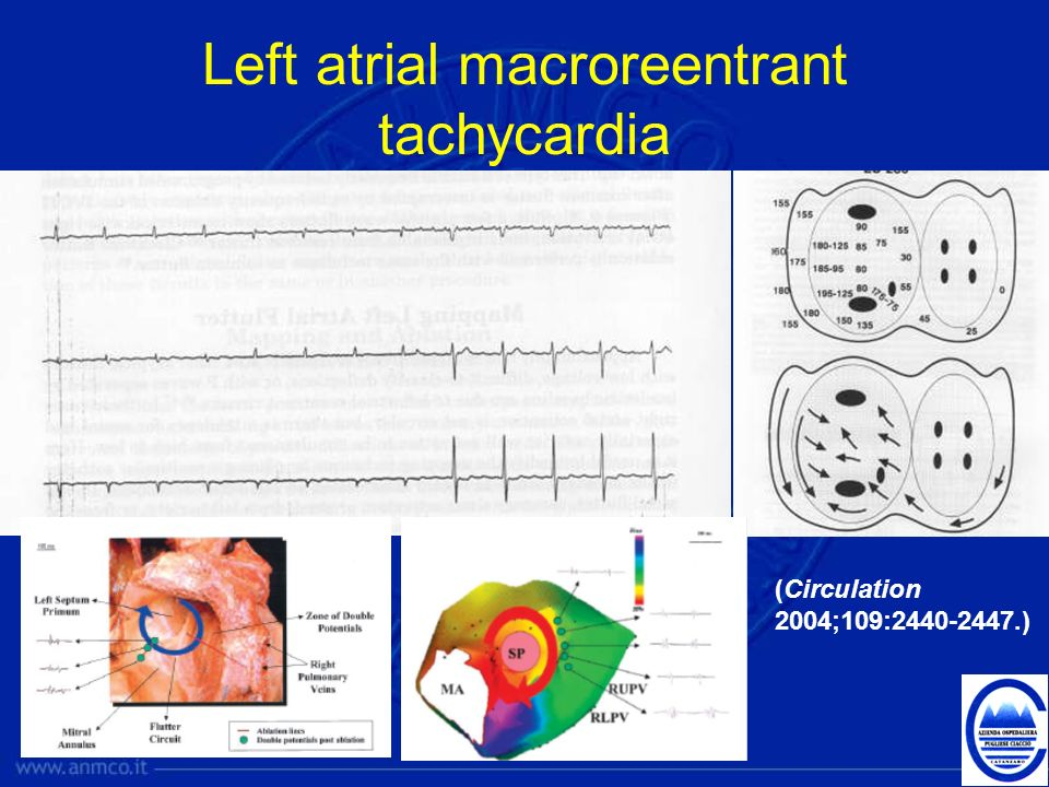 Left atrial macroreentrant tachycardia