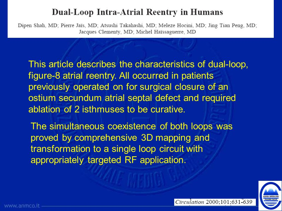 This article describes the characteristics of dual-loop, figure-8 atrial reentry. All occurred in patients previously operated on for surgical closure of an ostium secundum atrial septal defect and required ablation of 2 isthmuses to be curative.