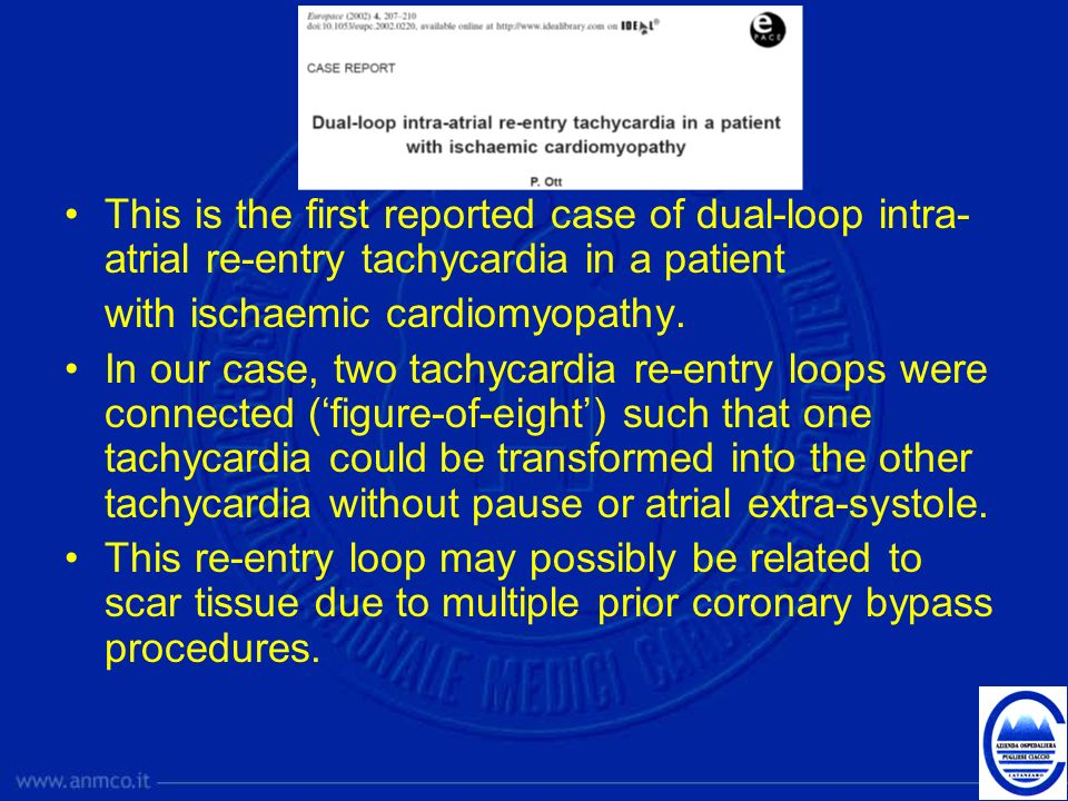 This is the first reported case of dual-loop intra-atrial re-entry tachycardia in a patient