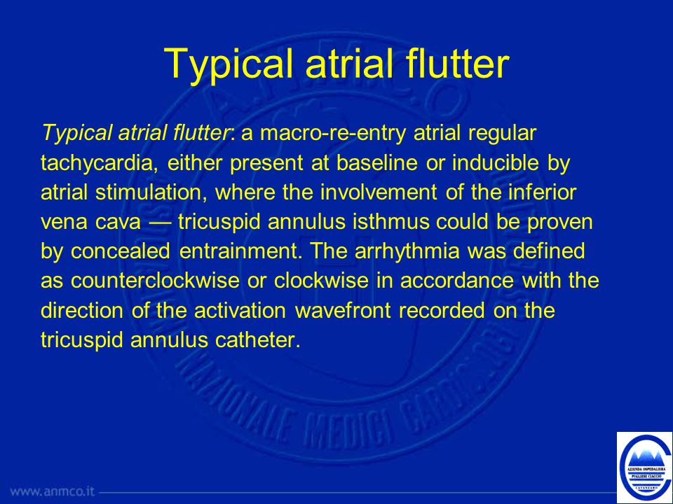 Typical atrial flutter