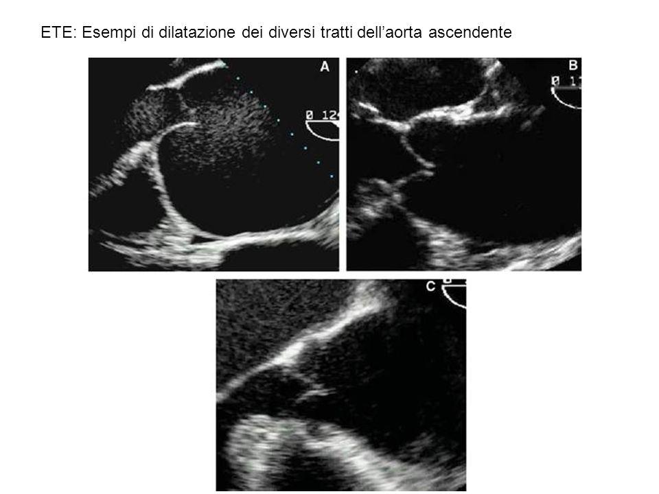 ETE: Esempi di dilatazione dei diversi tratti dell'aorta ascendente
