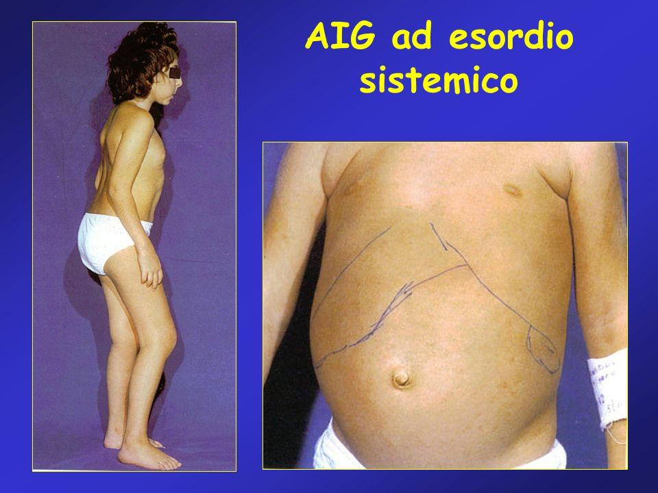 AIG ad esordio sistemico