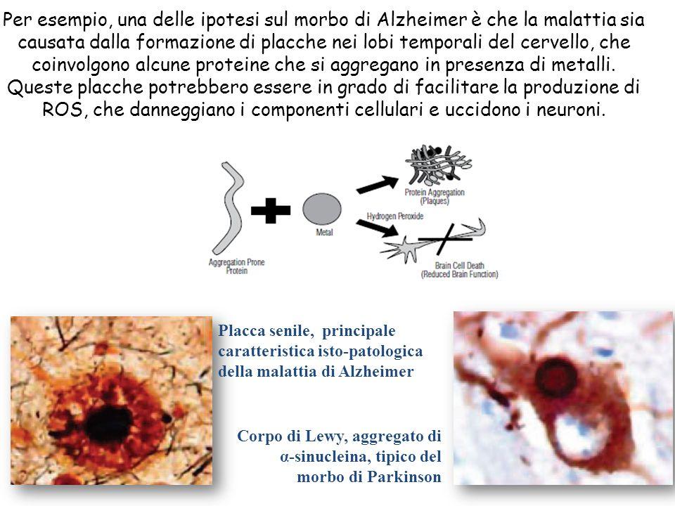 Per esempio, una delle ipotesi sul morbo di Alzheimer è che la malattia sia causata dalla formazione di placche nei lobi temporali del cervello, che coinvolgono alcune proteine che si aggregano in presenza di metalli. Queste placche potrebbero essere in grado di facilitare la produzione di ROS, che danneggiano i componenti cellulari e uccidono i neuroni.