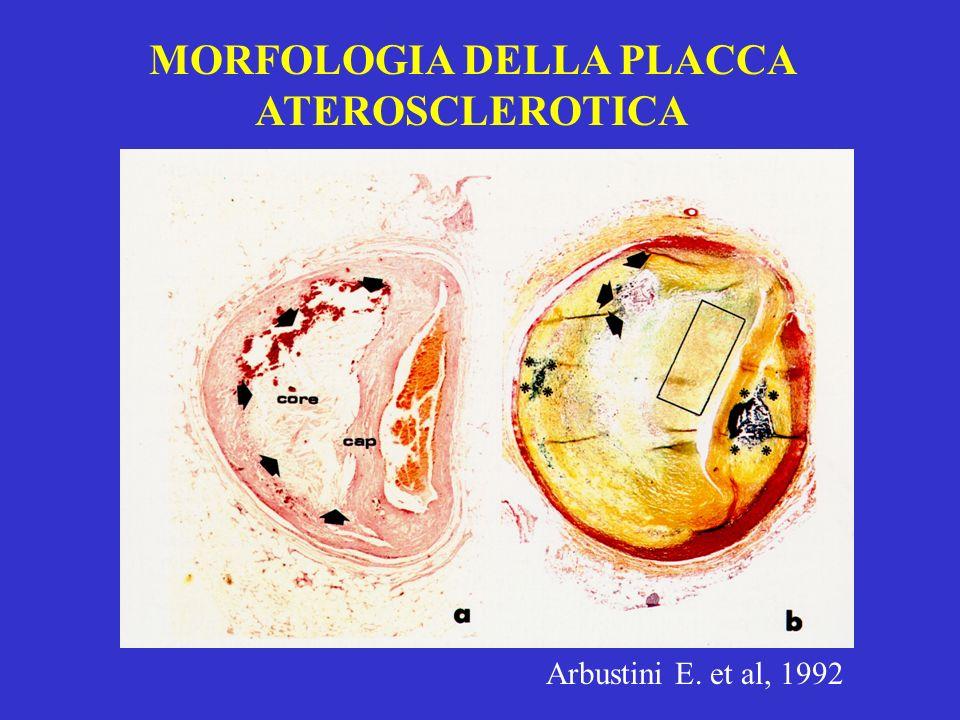 MORFOLOGIA DELLA PLACCA ATEROSCLEROTICA