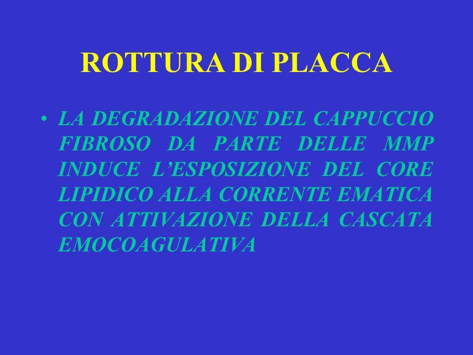 ROTTURA DI PLACCA