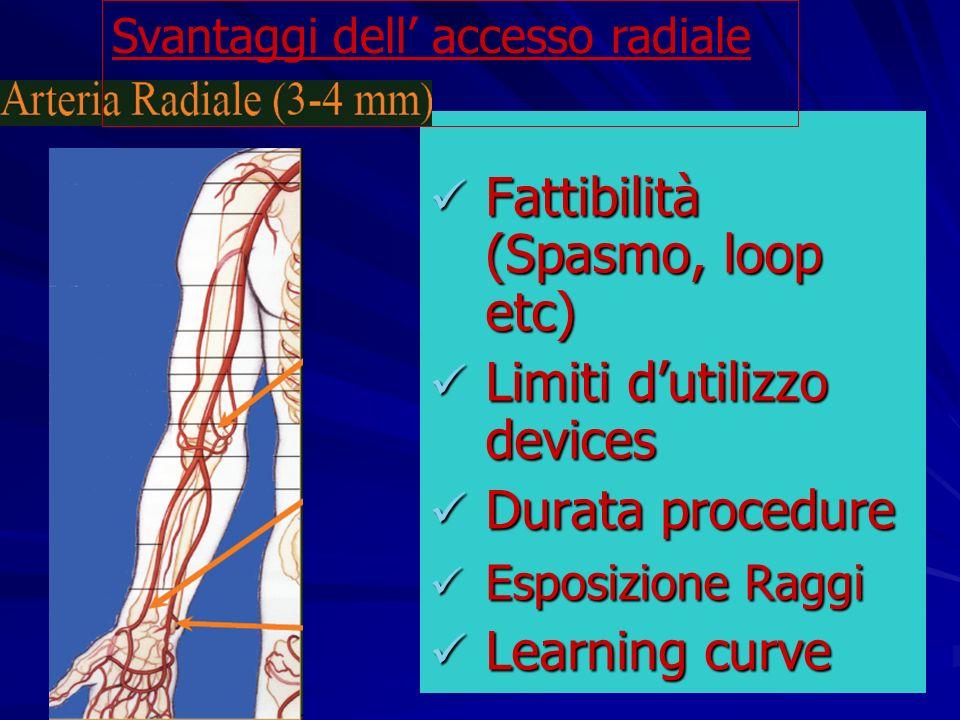 Fattibilità (Spasmo, loop etc)
