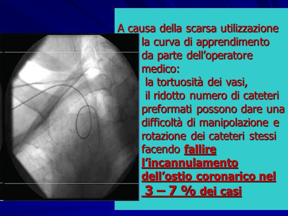 A causa della scarsa utilizzazione la curva di apprendimento da parte dell'operatore medico: la tortuosità dei vasi, il ridotto numero di cateteri preformati possono dare una difficoltà di manipolazione e rotazione dei cateteri stessi facendo fallire l'incannulamento dell'ostio coronarico nel 3 – 7 % dei casi
