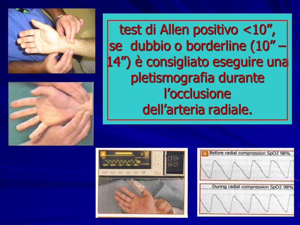 test di Allen positivo <10 , se dubbio o borderline (10 – 14 ) è consigliato eseguire una pletismografia durante l'occlusione dell'arteria radiale.