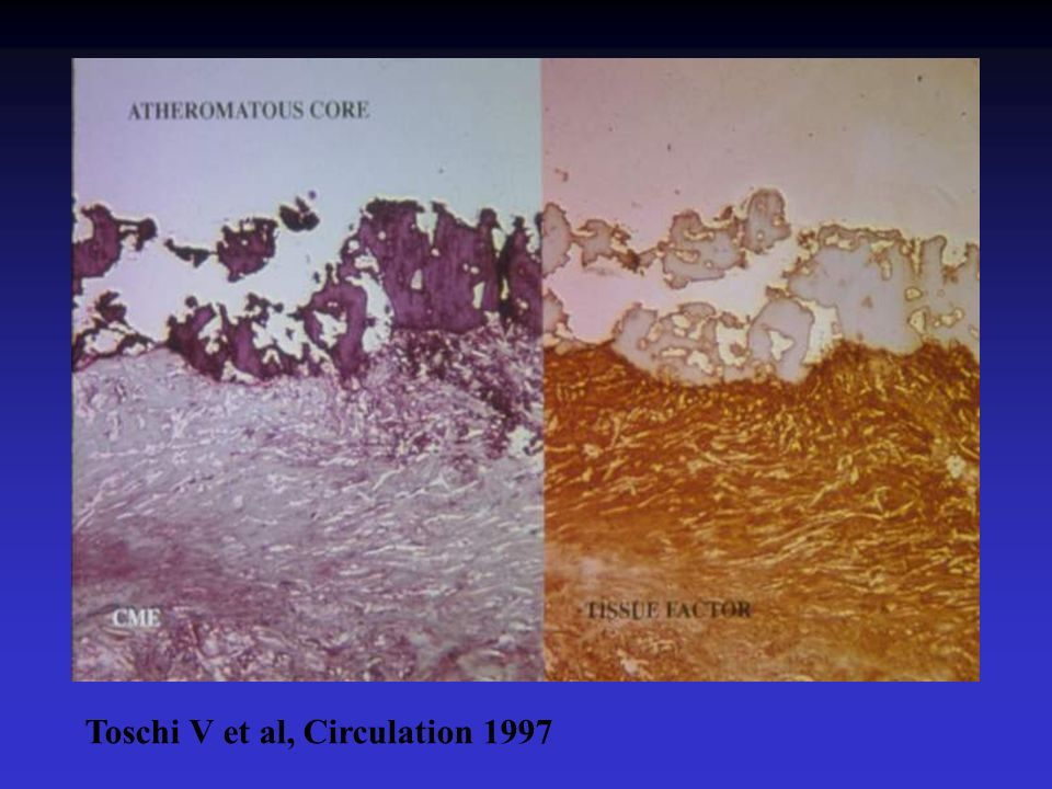 Toschi V et al, Circulation 1997