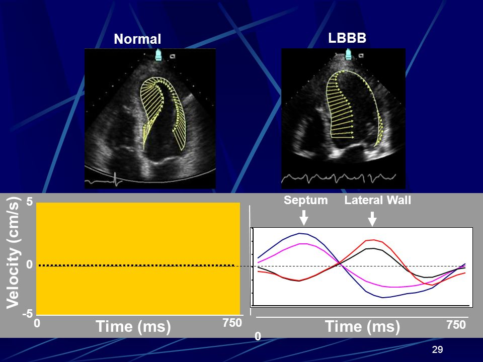 Velocity (cm/s) Time (ms) Time (ms) Normal LBBB 5 Septum Lateral Wall