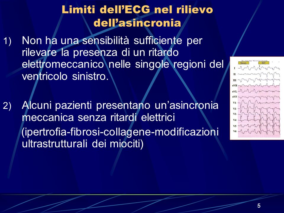 Limiti dell'ECG nel rilievo dell'asincronia
