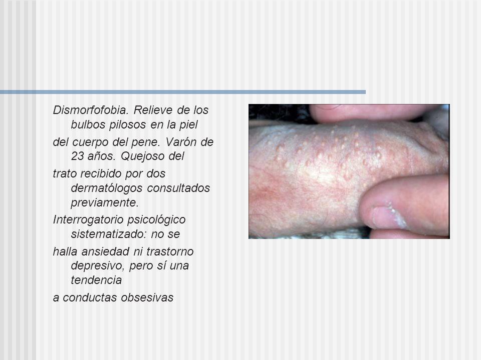 Dismorfofobia. Relieve de los bulbos pilosos en la piel