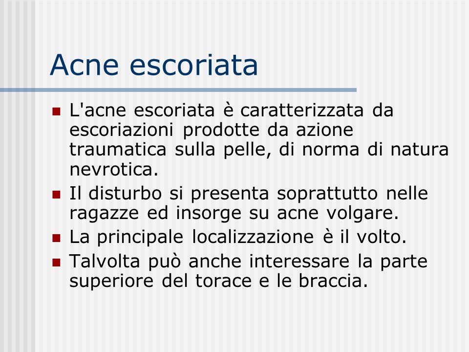 Acne escoriata L acne escoriata è caratterizzata da escoriazioni prodotte da azione traumatica sulla pelle, di norma di natura nevrotica.
