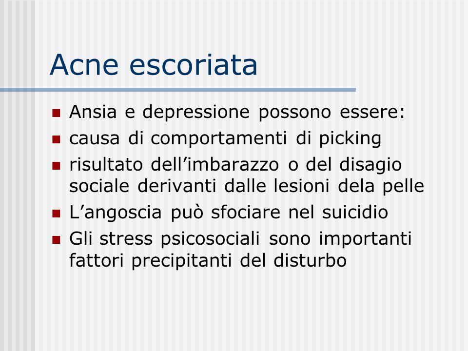 Acne escoriata Ansia e depressione possono essere:
